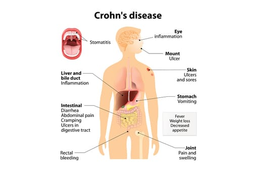 Crohn's Disease Diagram