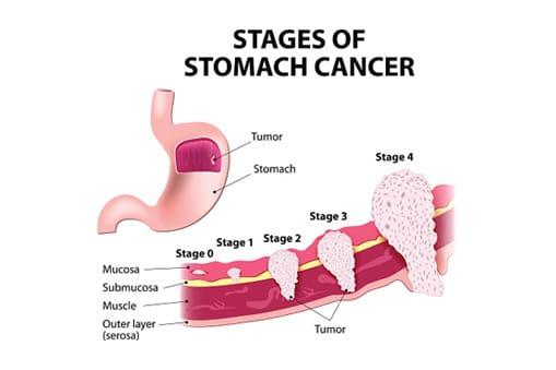 Stomach Cancer Diagram
