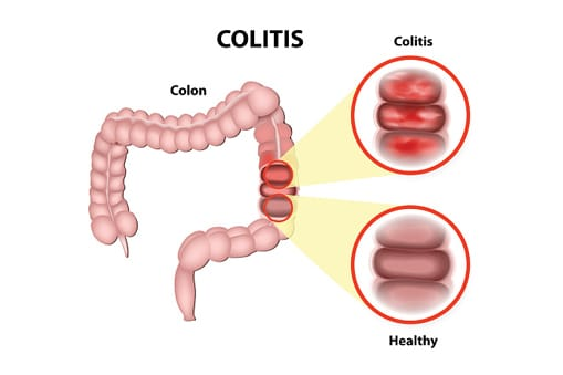 Ulcerative Colitis Diagram