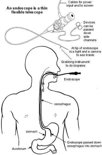Gastroscopy Diagram